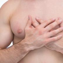 Revision Gynecomastia Surgery