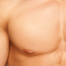 Puffy Nipple Gynecomastia Surgery
